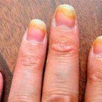 Хромомикоз: лечение, причины возникновения, симптомы, прогноз, профилактика