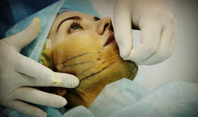 Что такое кисетные морщины: коррекция, отзывы, фото, филлер, видео, крем