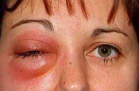 Флегмона: классификация, симптомы, причины, лечение, прогноз