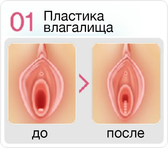 Феминизирующая вагинопластика: показания, противопоказания, проведение, осложнения, отзывы, цена