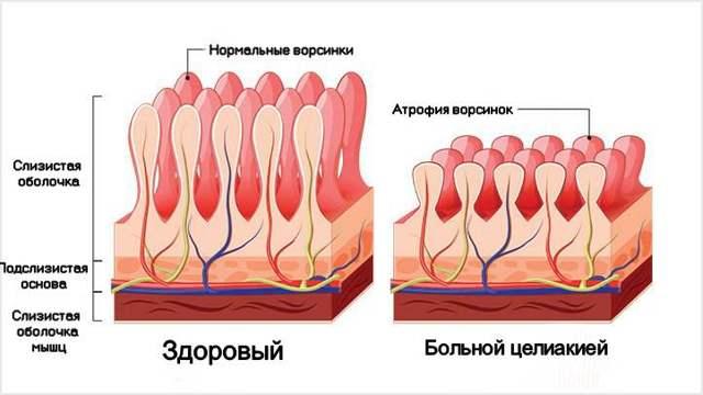 Целиакия: симптомы у взрослых и детей, диагностика, анализ крови, лечение, диета, фото, МКБ-10