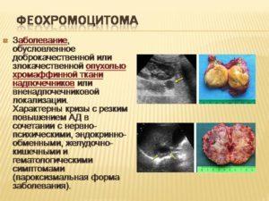 Феохромоцитома надпочечника: симптомы и причины, диагностика, лечение, прогноз жизни