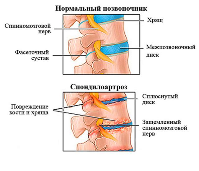 Спондилоартроз пояснично-крестцового отдела позвоночника: причины, симптомы и признаки, лечение, гимнастика и упражнения