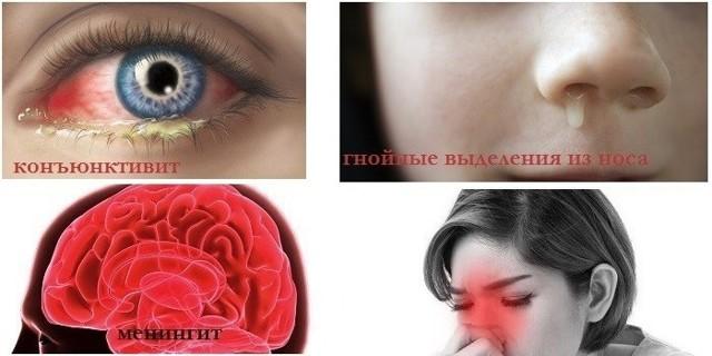 Хронический кистозно-полипозный гайморит: симптомы, лечение, операция