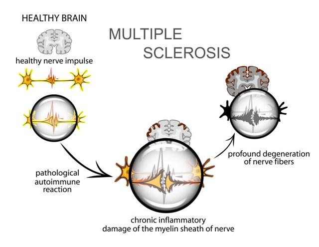 Формы рассеянного склероза у взрослых и детей: причины, симптомы и признаки, диагностика, лечение и прогнозы