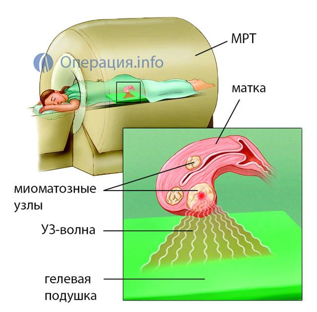 Фуз-абляция миомы матки: преимущества, противопоказания, стоимость, отзывы, подготовка