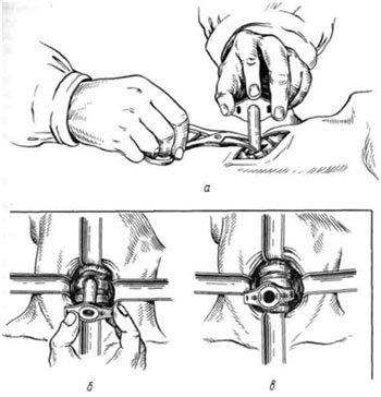 Экстренная трахеотомия: как делать, показания, виды, техника проведения