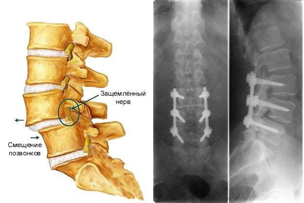 Стабильный и нестабильный двусторонний спондилолиз пояснично-крестцового отдела (l4-l5): признаки, рентгенодиагностика, лечение