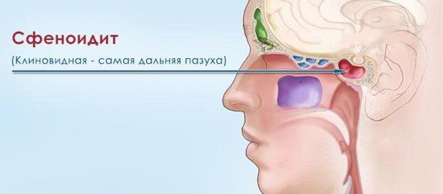 Сфиноидит: острый, хронический, катаральный, вазомоторный, экссудативный
