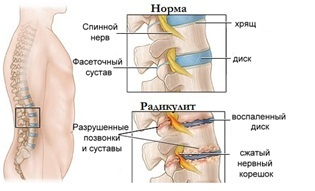 Чем опасна межпозвоночная грыжа шейного, грудного поясничного отдела позвоночника: последствия