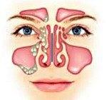 Хронический кистозно-полипозный синусит: симптомы, лечение, код по МКБ-10