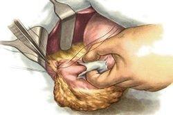 Спаечная болезнь брюшной полости: код по МКБ-10, симптомы, лечение, диета, народные средства