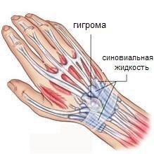 Шишки на руке, кисти, запястьях или пальцах под кожей с внутренней или внешней стороны: фото, причины, народные средства