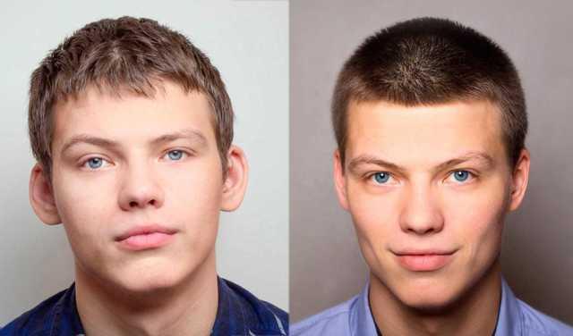 Цена и отзывы об отопластике: косметологов и пациентов, неудачная операция, фото до и после