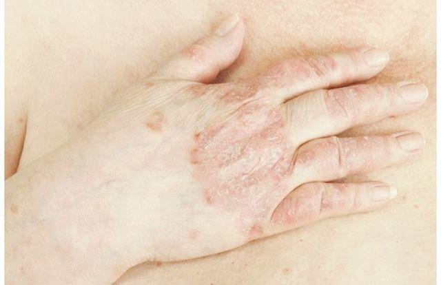 Экзематозная эритродермия: лечение, прогноз, симптомы, диагностика, причины