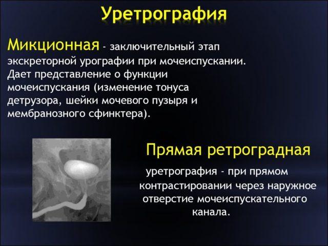 Уретрография у мужчин и женщин: показания, виды, подготовка, выполнения процедуры, осложнения