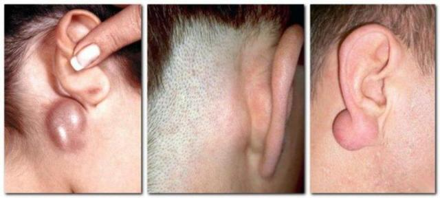 У ребенка за ухом на кости появилась шишка и болит при нажатии