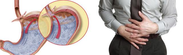 Хронический, билиарный и эрозивный рефлюкс гастрит: симптомы и лечение, диета