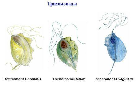 Трихомонадный уретрит у мужчин и женщин: причины, симптомы, диагностика, лечение