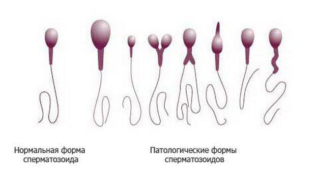 Тератоспермия : что это, причины, лечение, возможна ли беременность