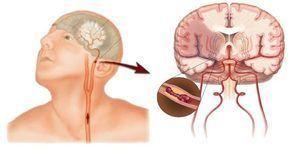 Транзиторная ишемическая атака в вертебробазилярном бассейне: симптомы, лечение, прогноз и меры профилактики