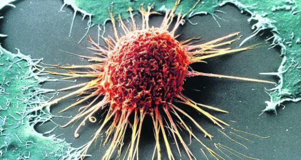 Хорионкарцинома: матки, яичка, яичника, симптомы у мужчин и женщин, лечение и прогноз