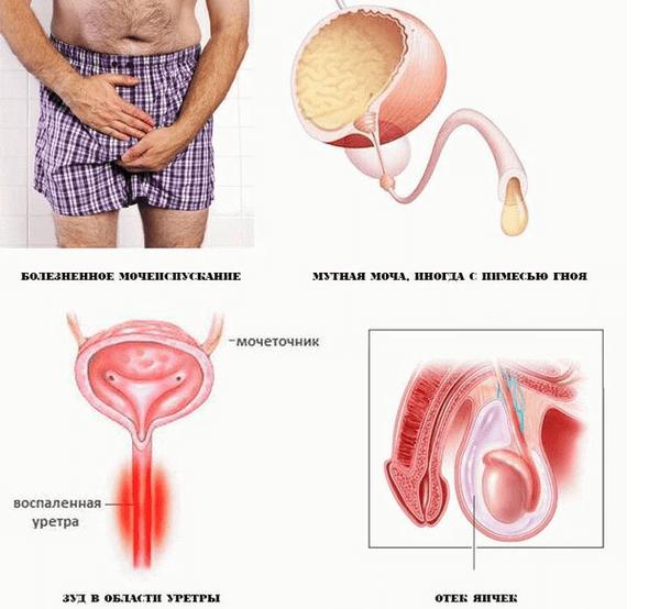 Хламидийный уретрит у мужчин и женщин: причины, симптомы, диагностика, лечение, осложнения