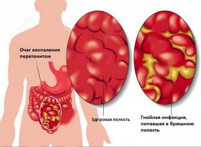 Удаление аппендицита: видео лапароскопии, сколько лежат в больнице, восстановление после операции