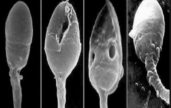 Тератозооспермия у мужчин: что это такое, причины, когда ставится диагноз и как лечится, возможность зачатия