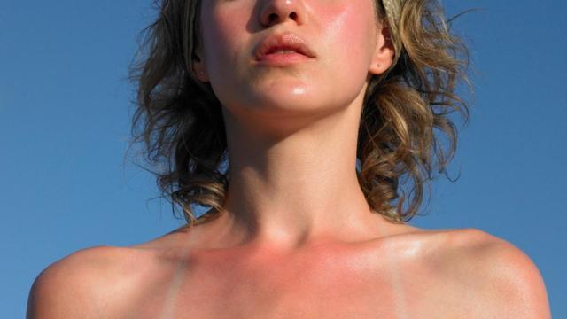 Солнечный дерматит: лечение в домашних условиях, симптомы, лекарство