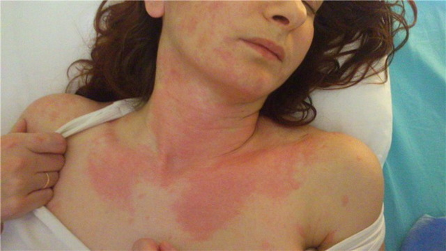 Тепловая крапивница у взрослых и детей: лечение, препараты, симптомы
