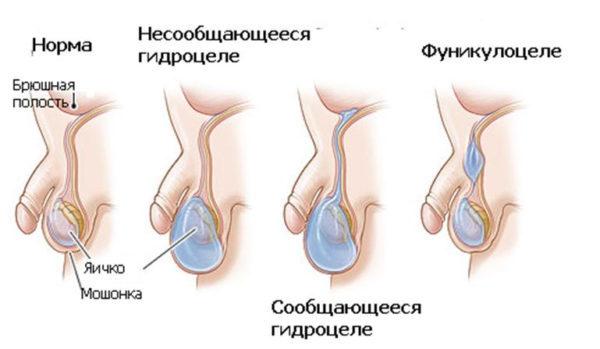 Фуникулоцеле у детей: виды, причины, симптомы, диагностика и лечение