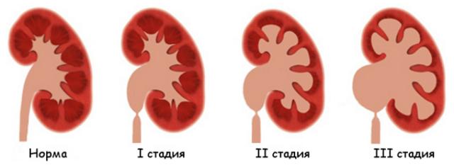 Уретерогидронефроз справа, слева, двусторонний у детей и взрослых: степени, симптомы, лечение, прогноз
