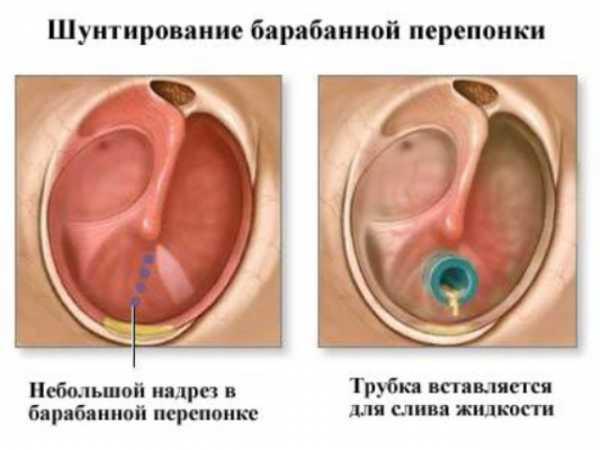 Шунтирование барабанной перегородки у взрослых и детей: отзывы и последствия
