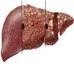 Хронический гепатит: код по МКБ-10, классификация, симптомы, этиология, диагностика, лечение