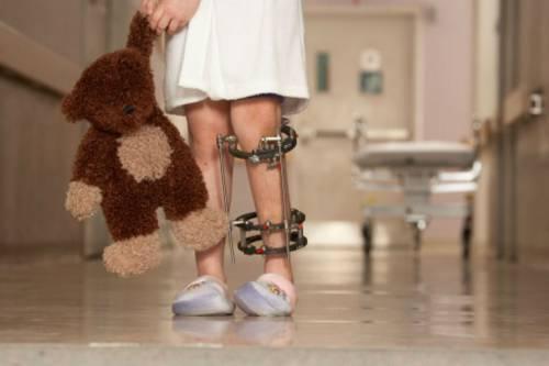 Артрит ювенильный идиопатический - описание, причины, симптомы (признаки), диагностика, лечение.