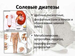 Солевой диатез почек у детей и у взрослых: признаки и симптомы, диагностика, лечение народными средствами и препаратами