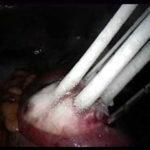 Флюорография перед пластической операцией: показания, противопоказания, техника, отзывы, цена