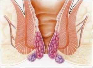 Чеснок для лечения простатита у мужчин: свойства, правила приема, противопоказания