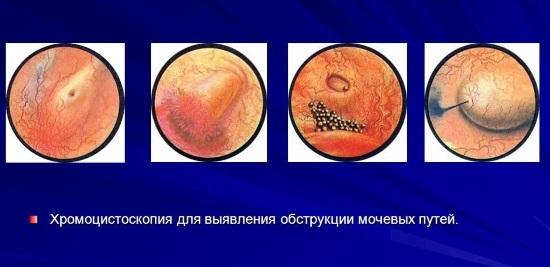 Хромоцистоскопия: что это, показания, подготовка, техника выполнения, расшифровка результатов