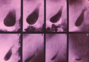 Холецистография: алгоритм подготовки пациента к исследованию, показания, противопоказания, цель