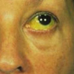 Стадии цирроза печени: симптомы на ранней и последней степени развития, сколько живут, фото, лечение