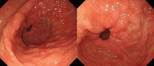 Хронический гиперпластический гастрит: симптомы, диагностика, лечение