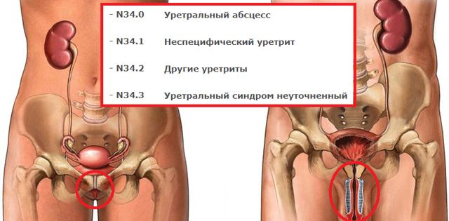 Уретральный карункул: под по МКБ-10, причины, симптомы, диагностика, лечение