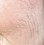 Статические морщины: показания, противопоказания, техника устранения, осложнения, отзывы