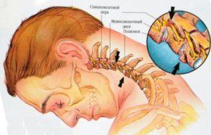 Шейный хондроз позвоночника: симптомы, признаки, лечение в домашних условиях