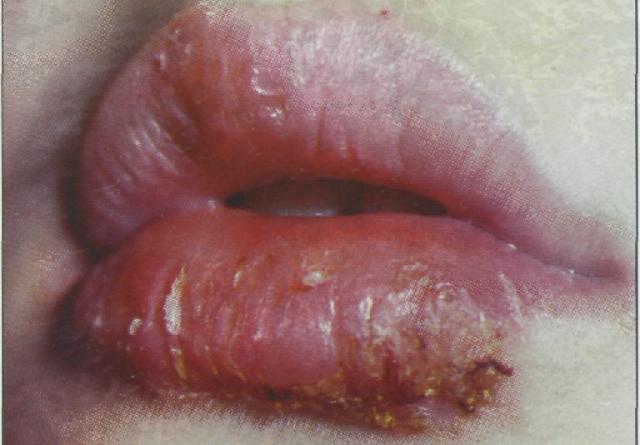 Хейлит: лечение, прогноз, симптомы, диагностика, причины, виды