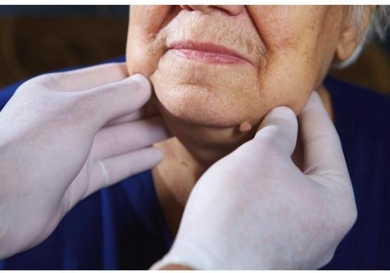 Что такое кожный рог: фото, лечение и удаление на лице, и на веке, причины рога у детей