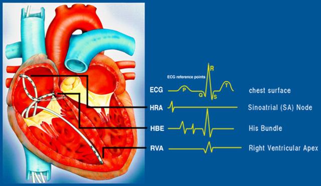 Электрофизиологическое исследование (ЭФИ сердца): показания, цена, подготовка к процедуре