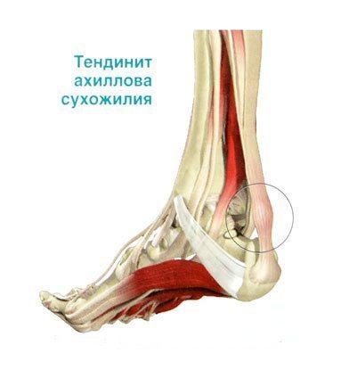 Энтезопатия коленного, тазобедренного, плечевого суставов, позвоночника, ахилллова сухожилия или пяточной кости: код по МКБ-10, лечение